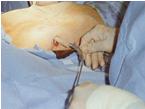 costosternoplasty1
